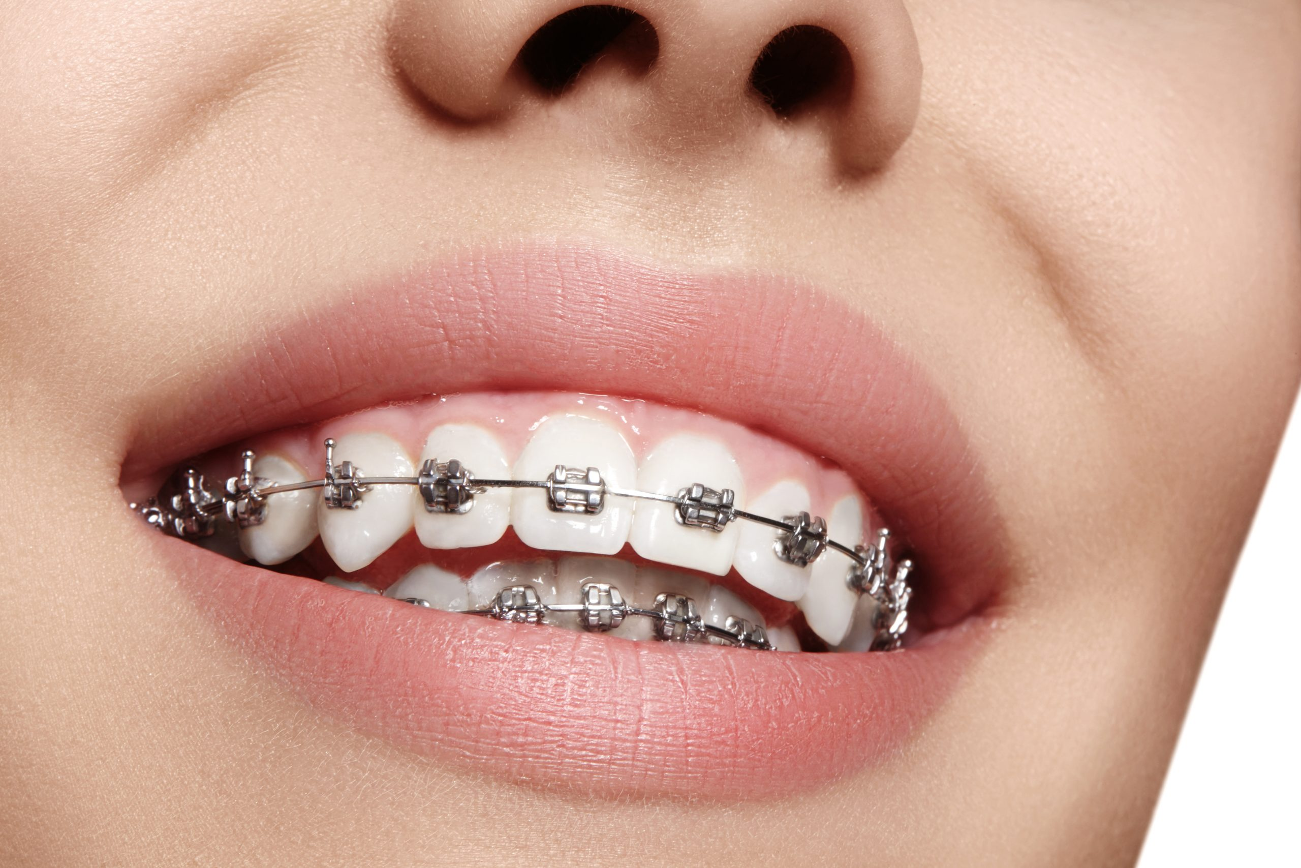 Metal Braces scaled